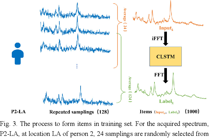 Figure 3 for Denoising Single Voxel Magnetic Resonance Spectroscopy with Deep Learning on Repeatedly Sampled In Vivo Data