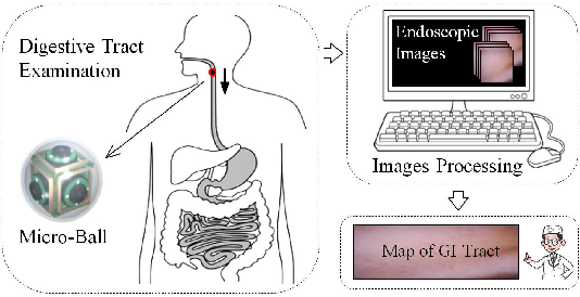 Figure 1 for 2D Reconstruction of Small Intestine's Interior Wall