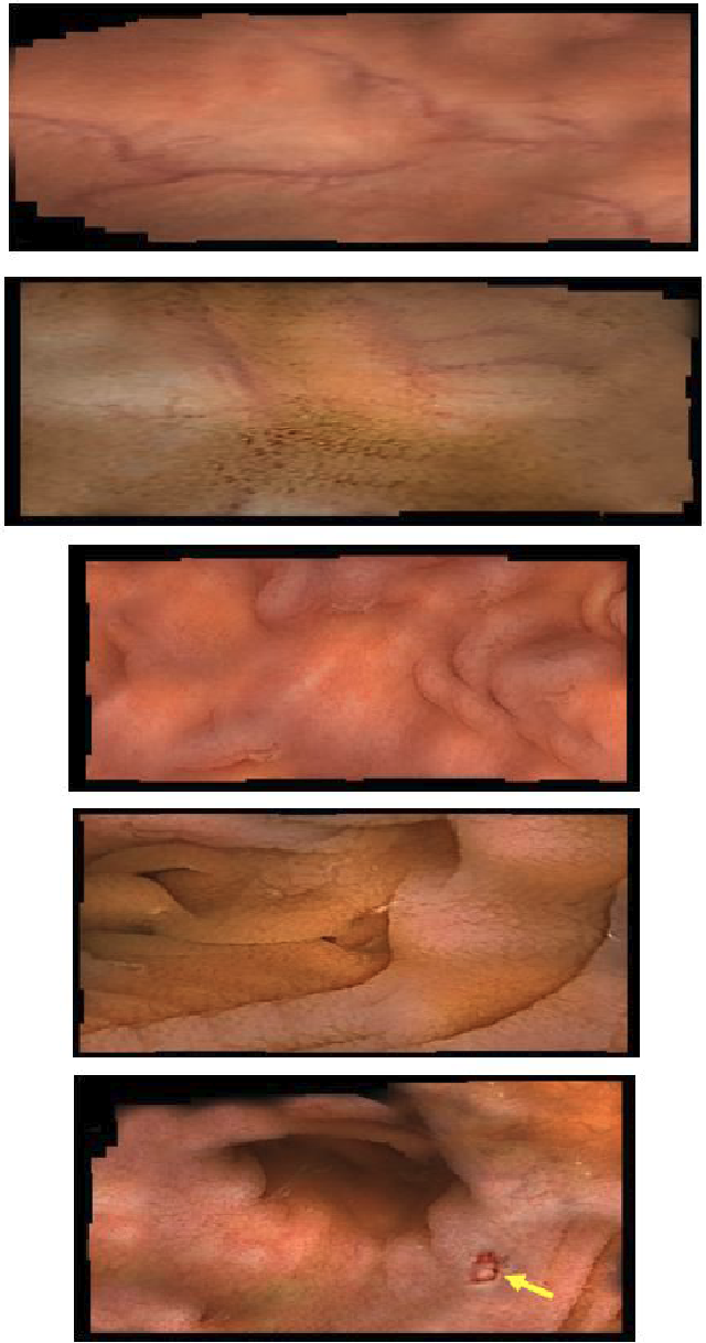 Figure 3 for 2D Reconstruction of Small Intestine's Interior Wall