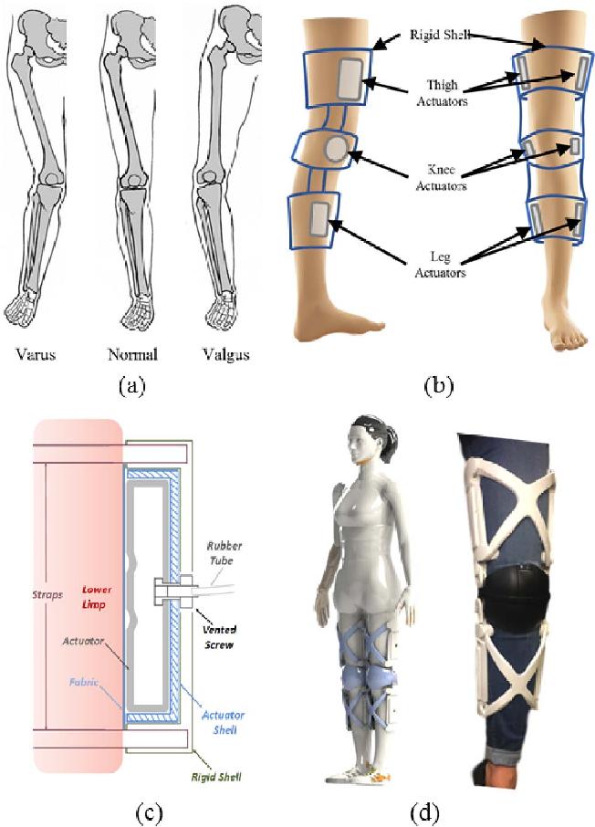 Figure 1 for Hybrid Actuator Design for a Gait Augmentation Wearable