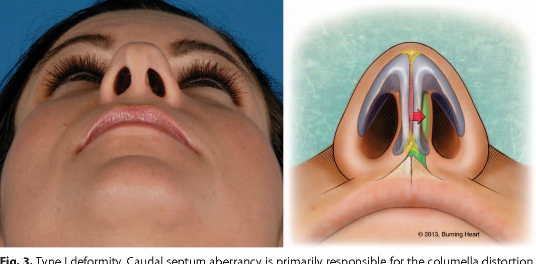 Classifying deformities of the columella base in rhinoplasty ...