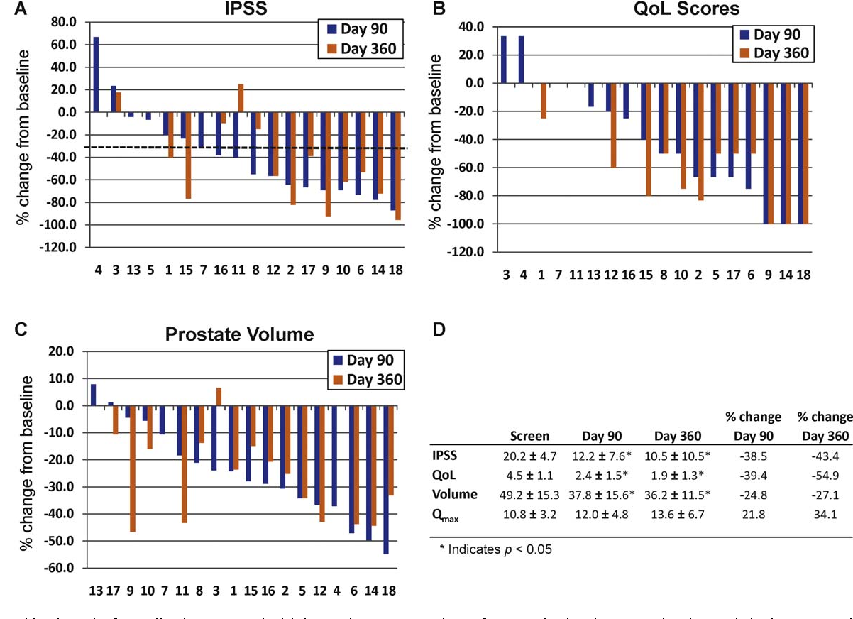 Fig. 3 – Combined results from all cohorts treated with increasing concentrations of PRX302 in the phase 2 study. The y-axis is the percent change in parameters compared to the day 0 value; the x-axis denotes individual patient numbers. The percent change in (A) International Prostate Symptom Score (IPSS), (B) quality of life (QoL) score; (C) and prostate volume for each patient at day 90 and day 360 compared to the day 0 value. The dotted line indicates 30% improvement. (D) The average values plus or minus standard error for IPSS, QoL, prostate volume, and maximum flow rate across all cohorts at 0, 90, and 360 days. IPSS = International Prostate Symptom Score; QoL = quality of life; Qmax = maximum flow rate.