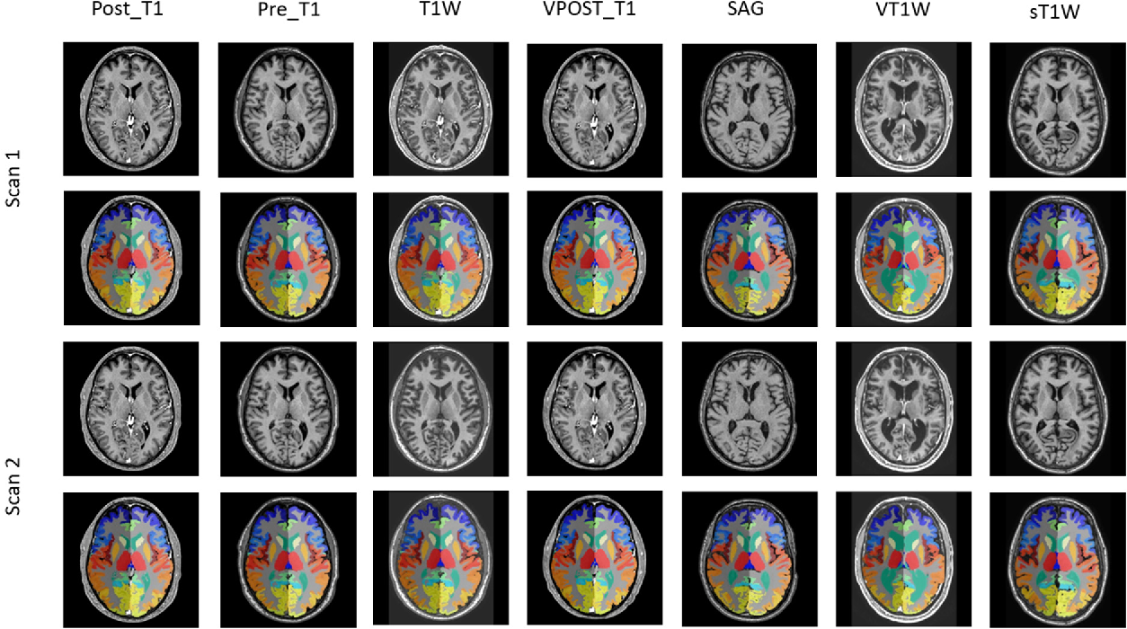 Figure 1 for Reproducibility Evaluation of SLANT Whole Brain Segmentation Across Clinical Magnetic Resonance Imaging Protocols