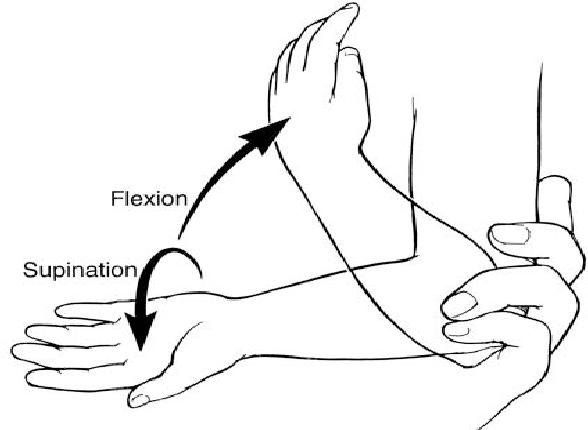 Figure 4 from Subluxation of the head of the radius; nursemaid\'s ...