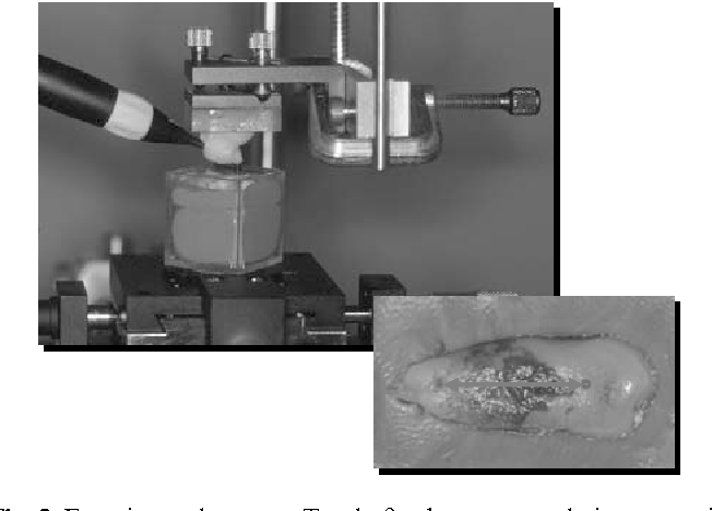 Fig. 2 Experimental set-up. Tooth fixed on a translation stage in order to scan the root surface. Small notches indicate the beginning and the end of the line