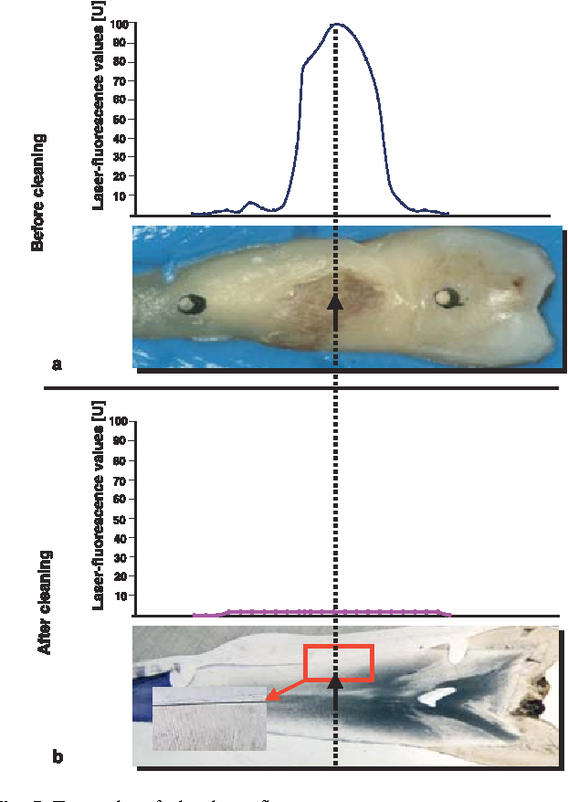 Fig. 5 Example of the laser-fluorescence measurements on a root surface before (a) and after (b) calculus removal. Whereas increased fluorescence signals accompanied the presence of calculus, no laserfluorescence effects could be shown after cleaning