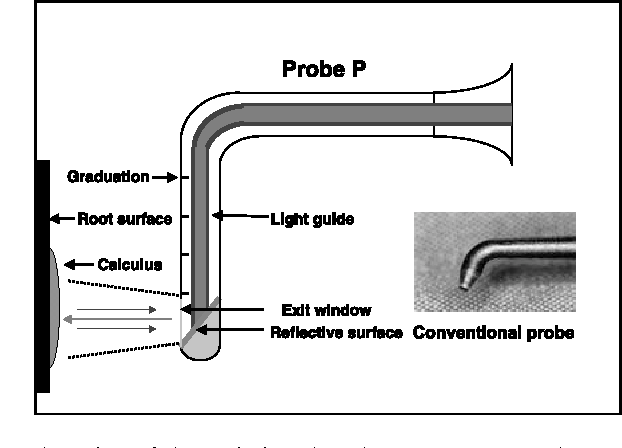 Fig. 6 Design of the periodontal probe. In contrast to the conventional probe 'A' of the DiagnodentTM-system, a reflection surface diverts the laser light vertically to the root surface