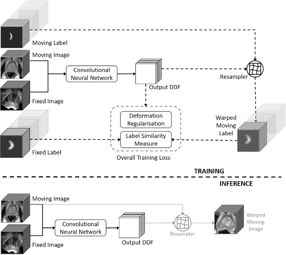 Figure 3 for Weakly-Supervised Convolutional Neural Networks for Multimodal Image Registration