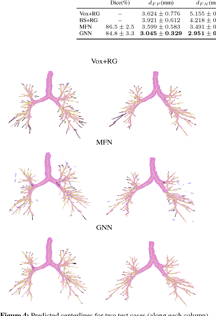 Figure 4 for Graph Refinement based Tree Extraction using Mean-Field Networks and Graph Neural Networks