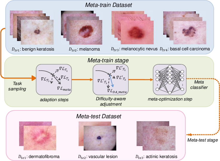 Figure 1 for Difficulty-aware Meta-Learning for Rare Disease Diagnosis