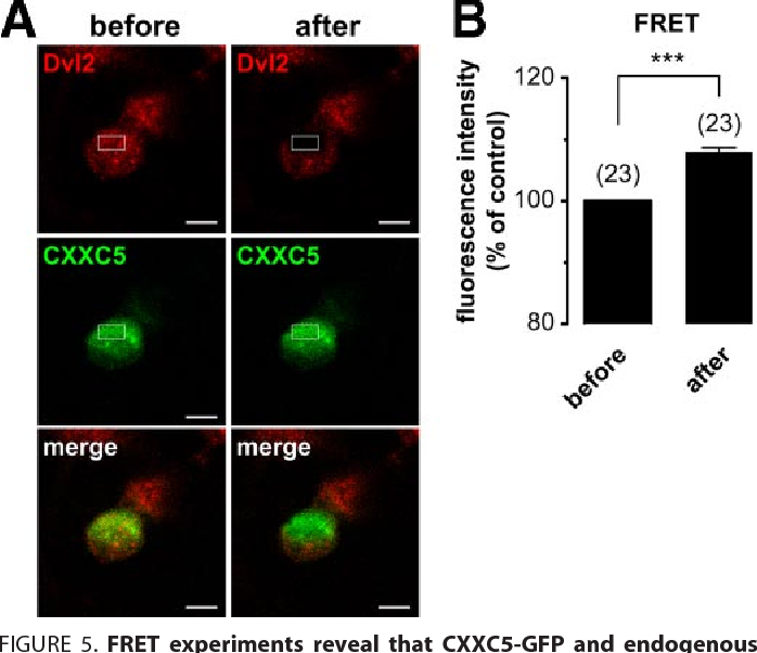 FIGURE 5. FRET experiments reveal that CXXC5-GFP and endogenous Dvl2 are localized in close proximity in neural stem cells. Acceptor photobleaching FRET measurements were performed on NSCs nucleofected with CXXC5-GFP (donor) and in which Dvl2 was revealed by an Alexa555-coupled IgG secondary antibody (acceptor). A, expression of Dvl2-Alexa555 and CXXC5-GFP in NSCs before (left panel) and after (right panel) acceptor photobleaching. The bleached region is indicated by a white rectangle on the pictures. Scale bar: 5 m. B, quantitative analysis of the FRET changes before and after photobleaching, with the number of cells analyzed in parentheses. ***, p 0.001.