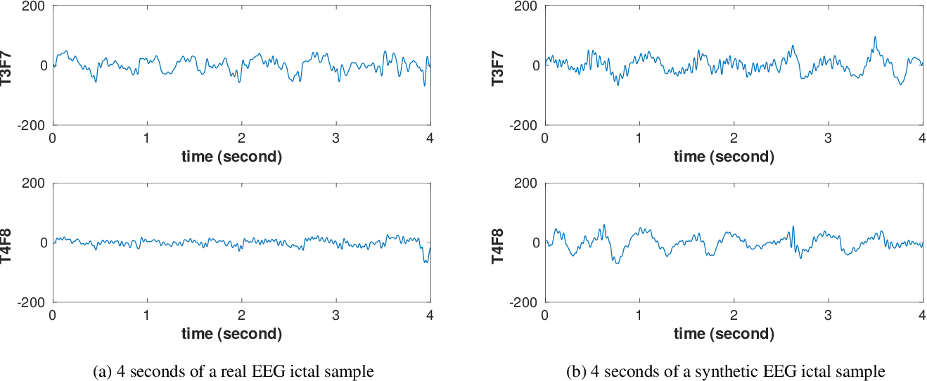 Figure 3 for Synthetic Epileptic Brain Activities Using Generative Adversarial Networks