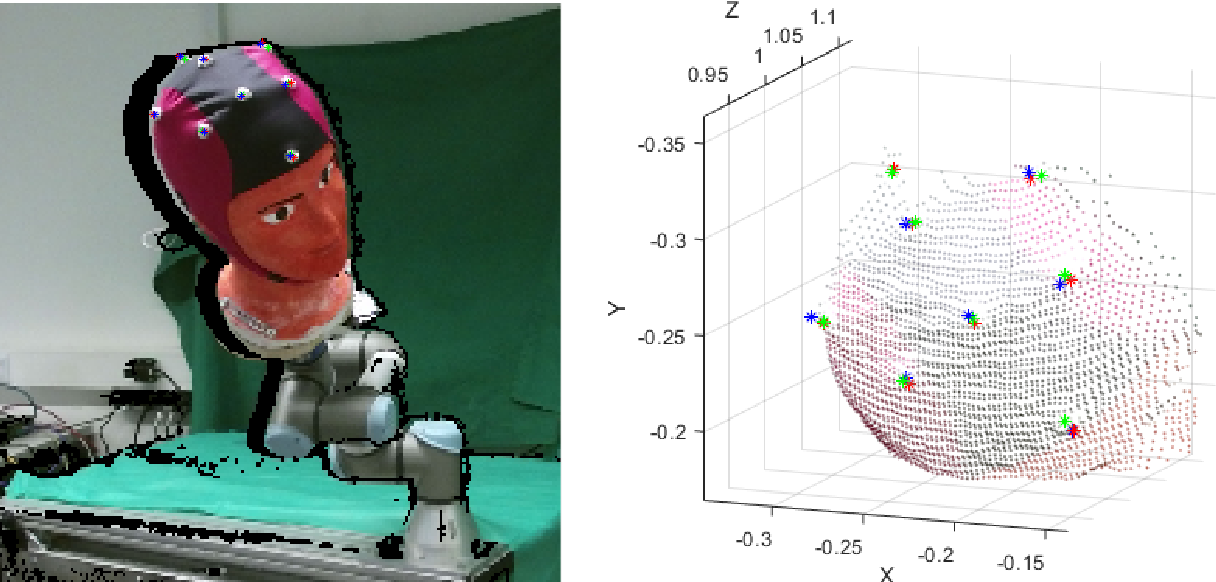 Figure 3 for Towards Deep Learning-Based EEG Electrode Detection Using Automatically Generated Labels