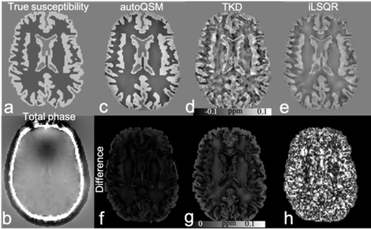 Figure 4 for Learning-based Single-step Quantitative Susceptibility Mapping Reconstruction Without Brain Extraction