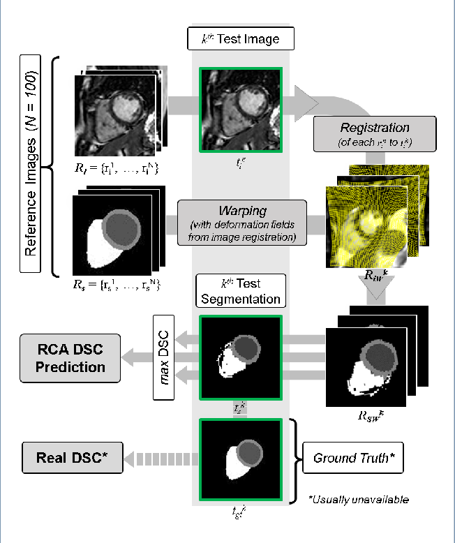 Figure 1 for Automated Quality Control in Image Segmentation: Application to the UK Biobank Cardiac MR Imaging Study