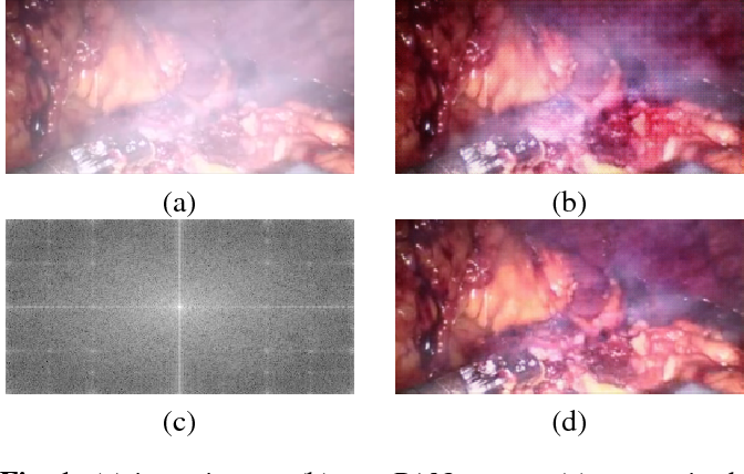 Figure 1 for Generative Smoke Removal