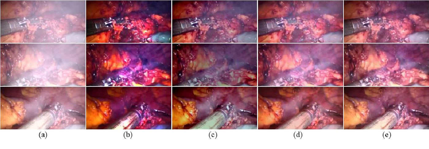 Figure 4 for Generative Smoke Removal