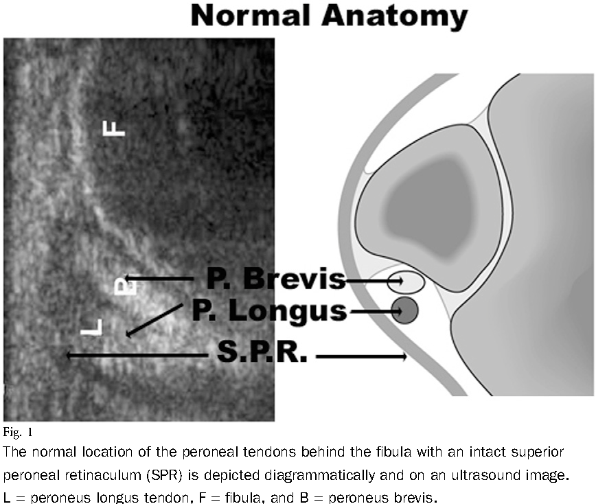 Figure 1 from Intrasheath subluxation of the peroneal tendons ...