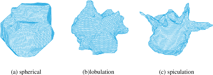 Figure 1 for Classification of lung nodules in CT images based on Wasserstein distance in differential geometry