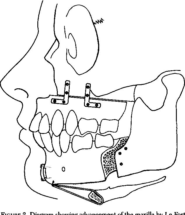 Figure 2 From A Comparison Of Treatment For Obstructive Sleep Apnea