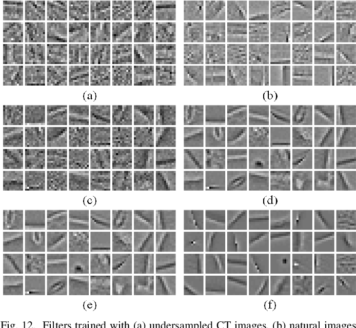 Figure 4 for Convolutional Sparse Coding for Compressed Sensing CT Reconstruction