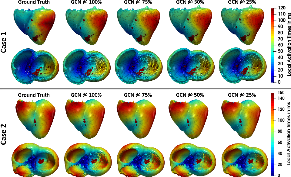 Figure 4 for Graph convolutional regression of cardiac depolarization from sparse endocardial maps