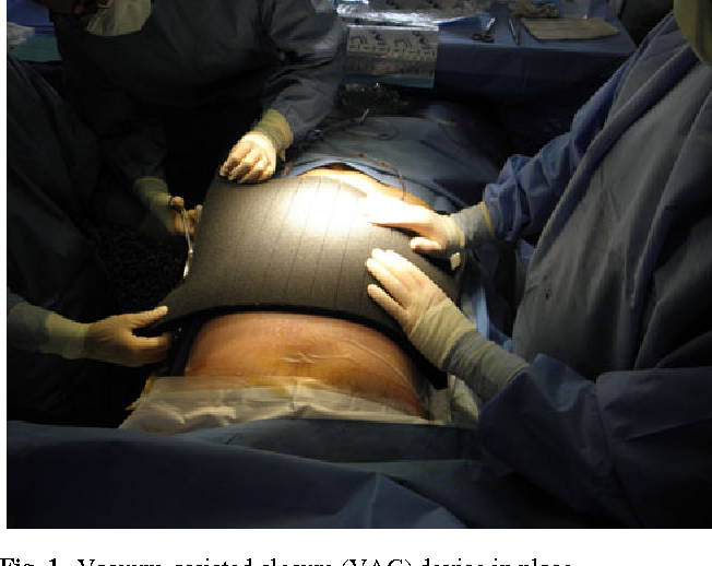 Use of vacuum-assisted closure in open incisional hernia