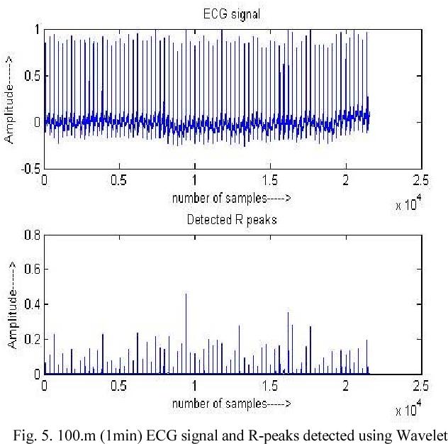 R-peak detection using efficient technique for tachycardia