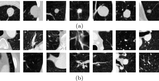 Figure 1 for Single-view 2D CNNs with Fully Automatic Non-nodule Categorization for False Positive Reduction in Pulmonary Nodule Detection