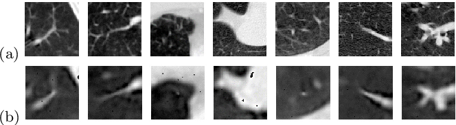 Figure 4 for Single-view 2D CNNs with Fully Automatic Non-nodule Categorization for False Positive Reduction in Pulmonary Nodule Detection
