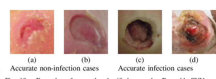 Figure 2 for Recognition of Ischaemia and Infection in Diabetic Foot Ulcers: Dataset and Techniques