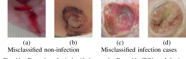 Figure 3 for Recognition of Ischaemia and Infection in Diabetic Foot Ulcers: Dataset and Techniques