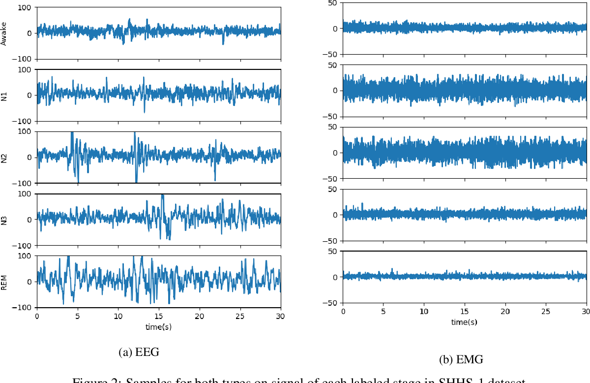 Figure 3 for Ensemble of Convolution Neural Networks on Heterogeneous Signals for Sleep Stage Scoring