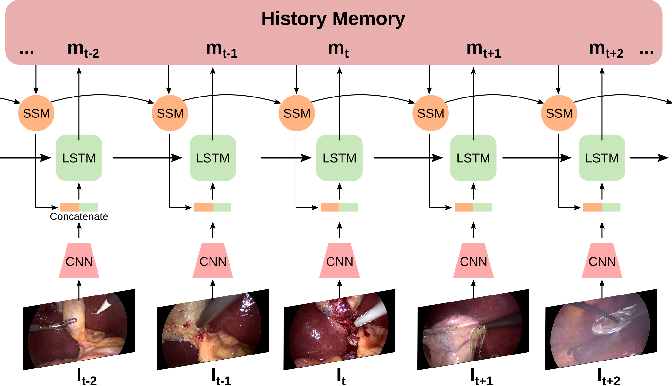 Figure 1 for Aggregating Long-Term Context for Learning Surgical Workflows