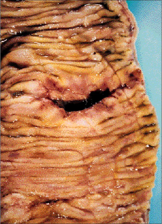 Figure 5 From Tuberculosis 6 Extrapulmonary Disease Semantic