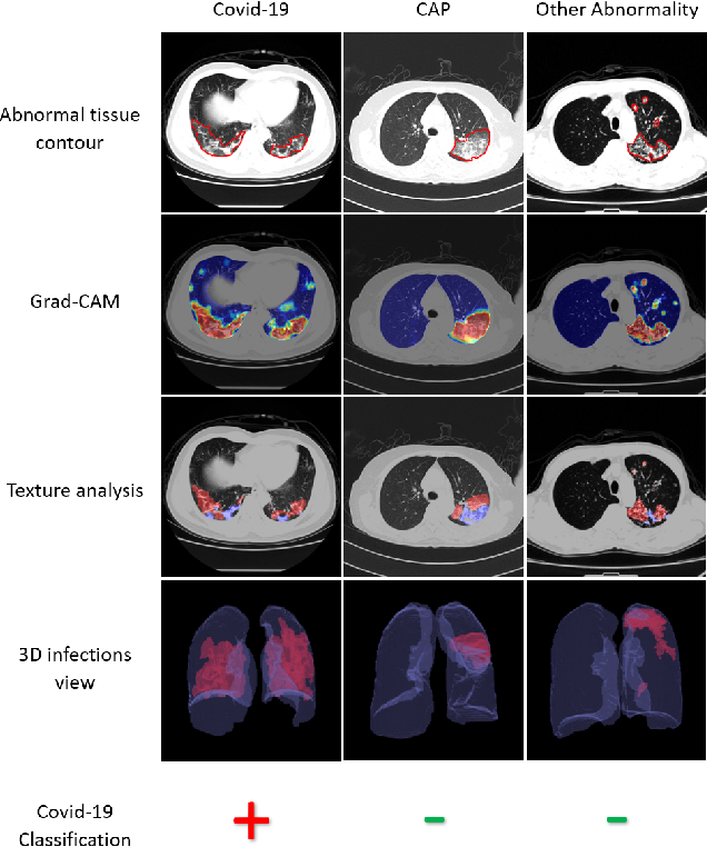 Figure 1 for Automated triage of COVID-19 from various lung abnormalities using chest CT features