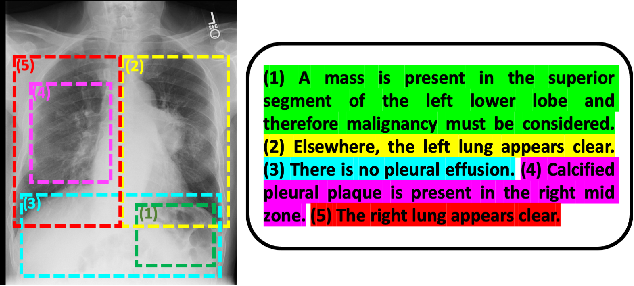 Figure 1 for Multimodal Representation Learning via Maximization of Local Mutual Information