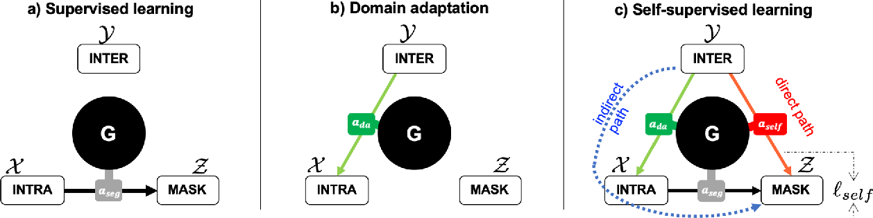 Figure 1 for Unifying domain adaptation and self-supervised learning for CXR segmentation via AdaIN-based knowledge distillation