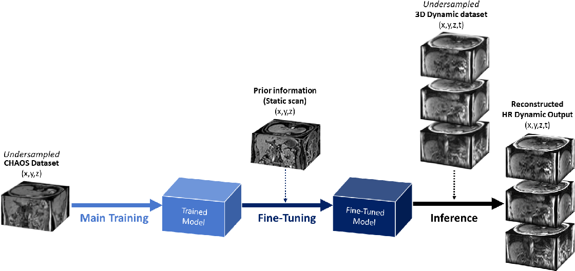 Figure 2 for Fine-tuning deep learning model parameters for improved super-resolution of dynamic MRI with prior-knowledge