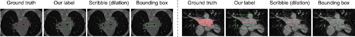Figure 3 for Weakly Supervised Volumetric Segmentation via Self-taught Shape Denoising Model