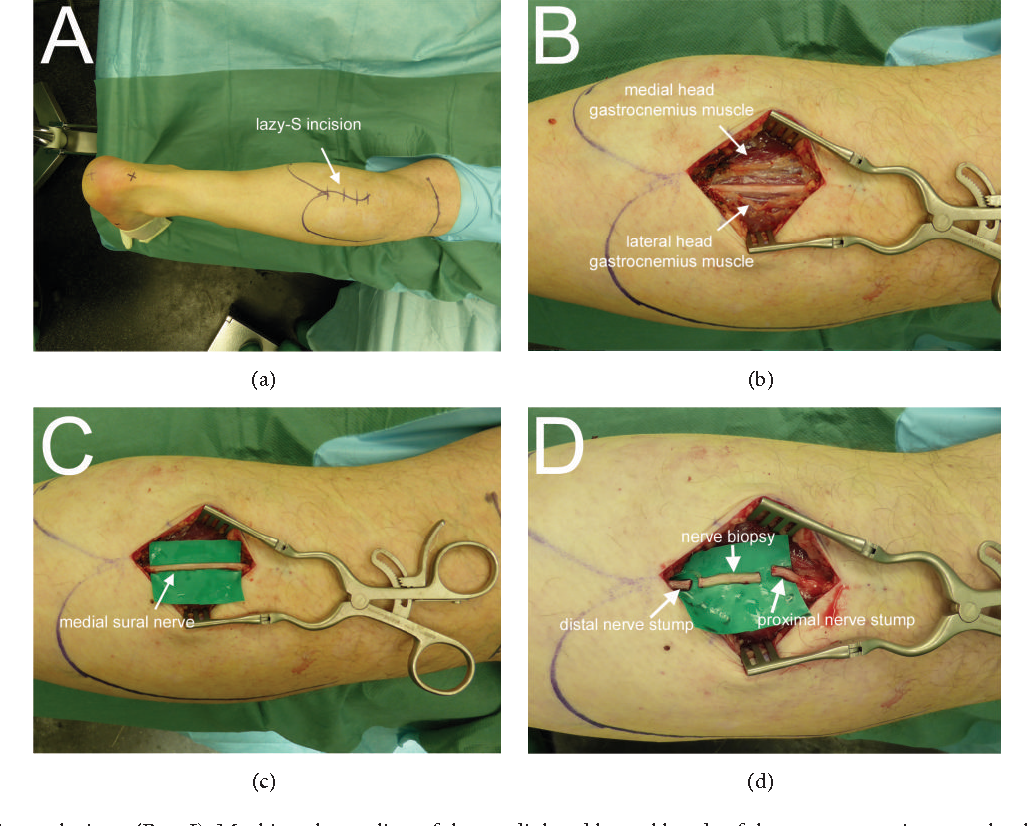 The Proximal Medial Sural Nerve Biopsy Model A Standardised And