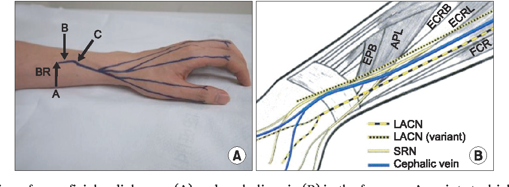 ultrasonographic findings of superficial radial nerve and cephalic