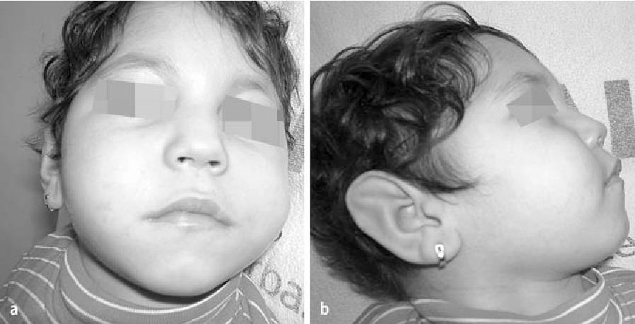 Figure 1 from Pontocerebellar hypoplasia type III (CLAM