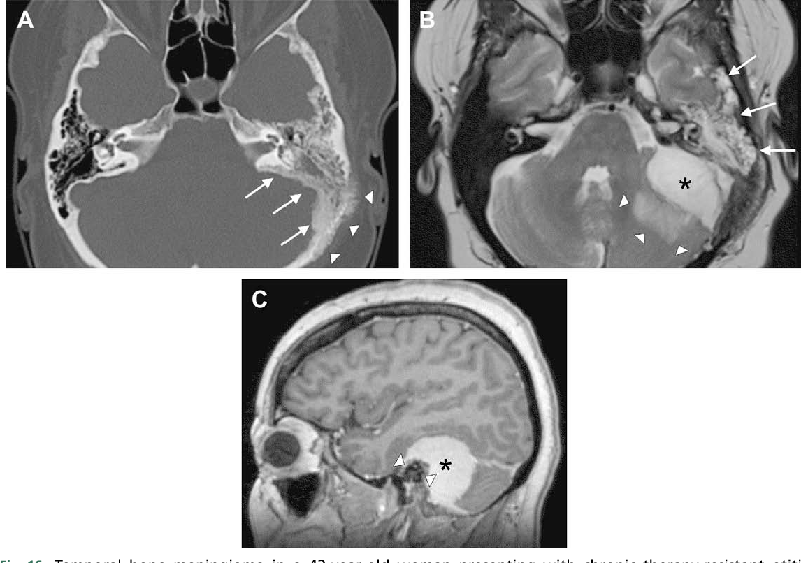 Figure 16 from Imaging of temporal bone tumors  - Semantic Scholar