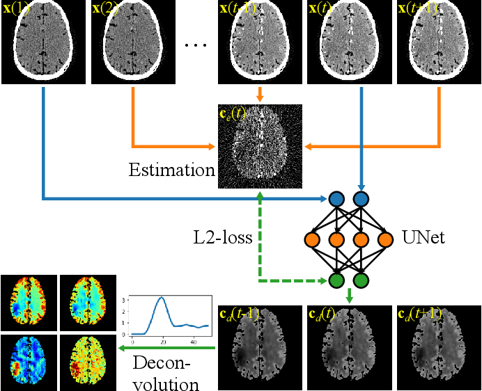 Figure 1 for Self-supervised Dynamic CT Perfusion Image Denoising with Deep Neural Networks