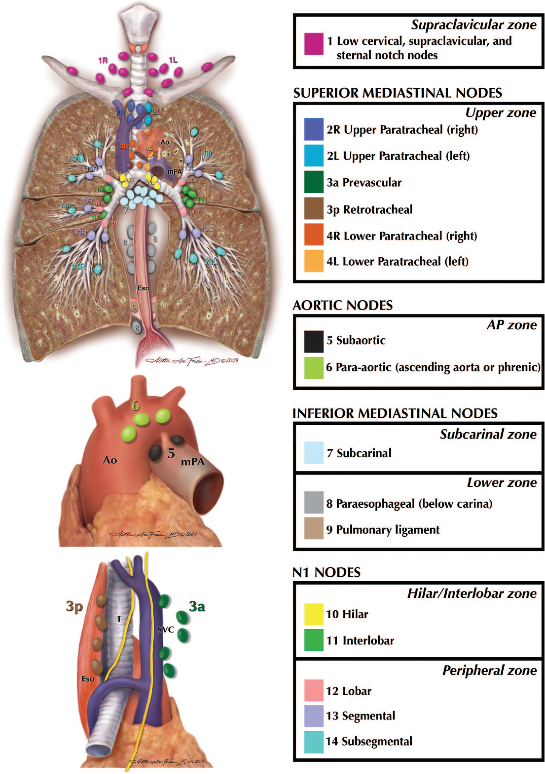 The IASLC lung cancer staging project: a proposal for a new ...