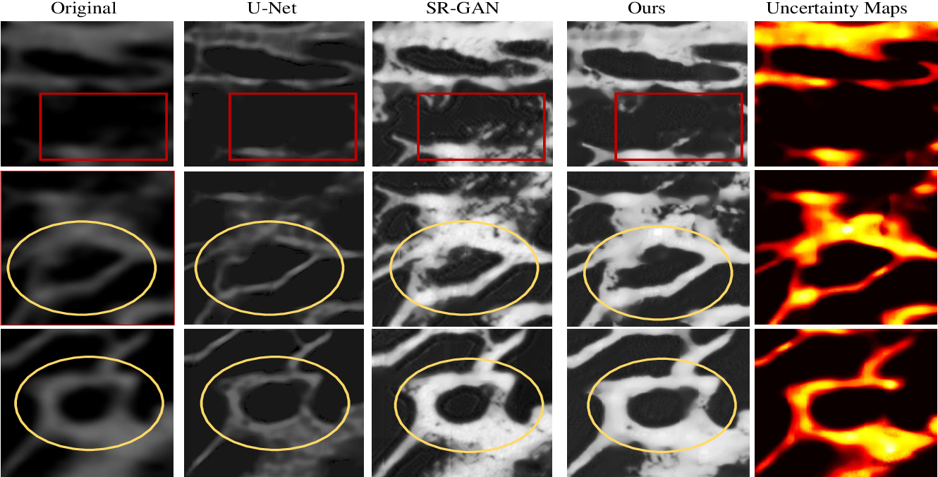 Figure 2 for Micro-CT Synthesis and Inner Ear Super Resolution via Bayesian Generative Adversarial Networks