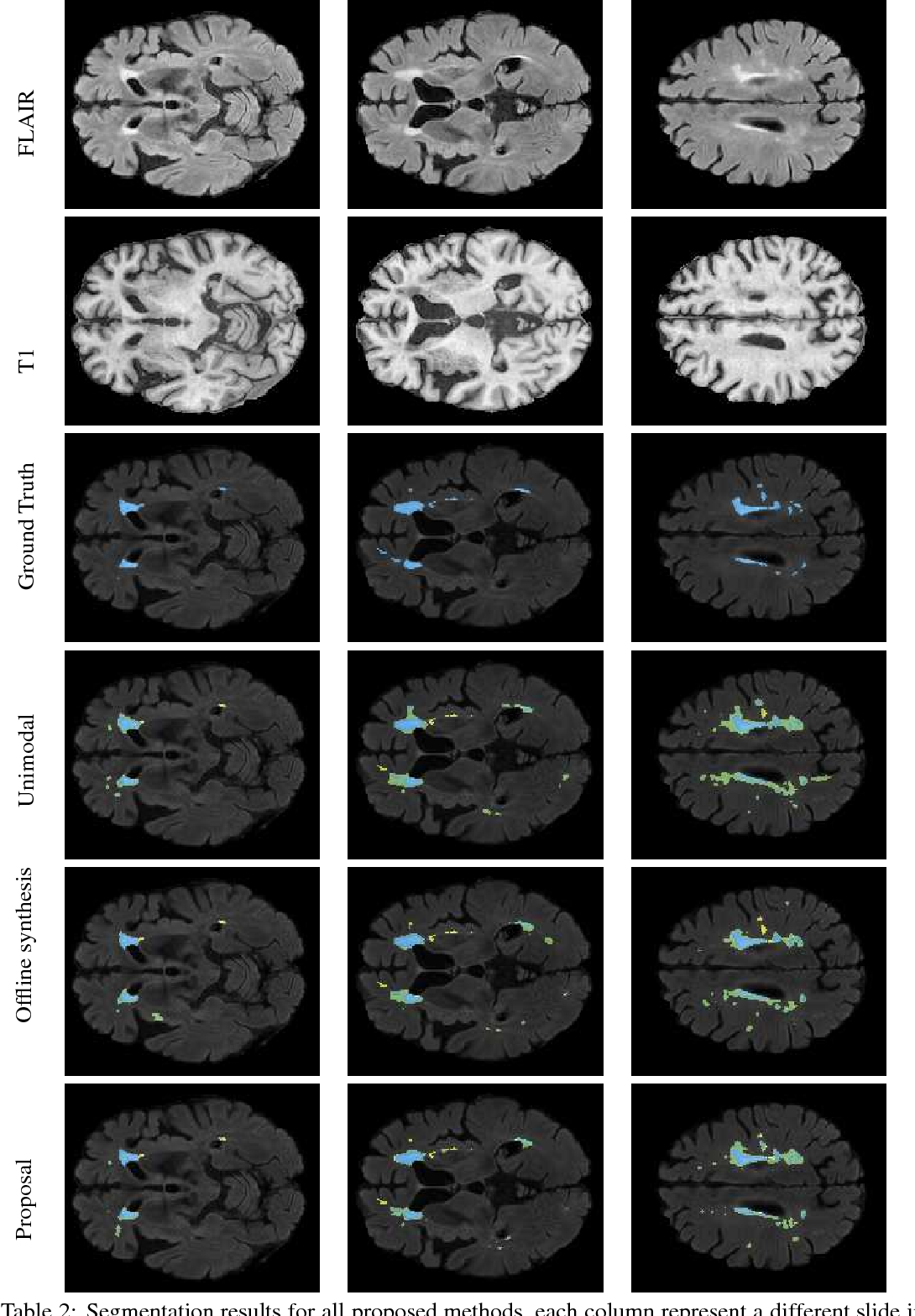 Figure 4 for Simultaneous synthesis of FLAIR and segmentation of white matter hypointensities from T1 MRIs
