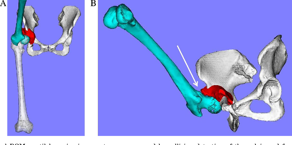 Figure 2 From Hip Range Of Motion Rom Is Less Than Normal After