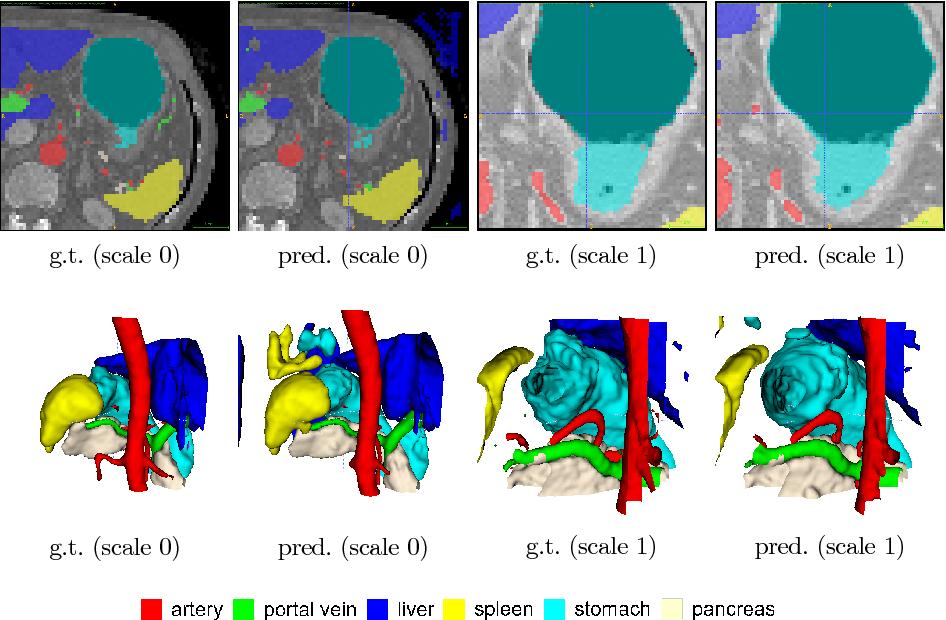 Figure 3 for A multi-scale pyramid of 3D fully convolutional networks for abdominal multi-organ segmentation